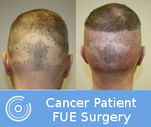 cancerpatient_beforeafter