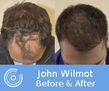johnwilmot_beforeafter