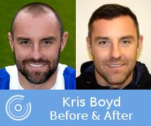 Kris Boyd Hair Transplant