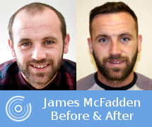 James McFadden Hair Transplant