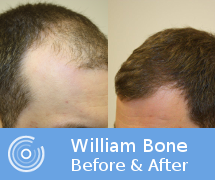 williambone_beforeafter