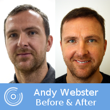 Andy Webster Hair Transplant